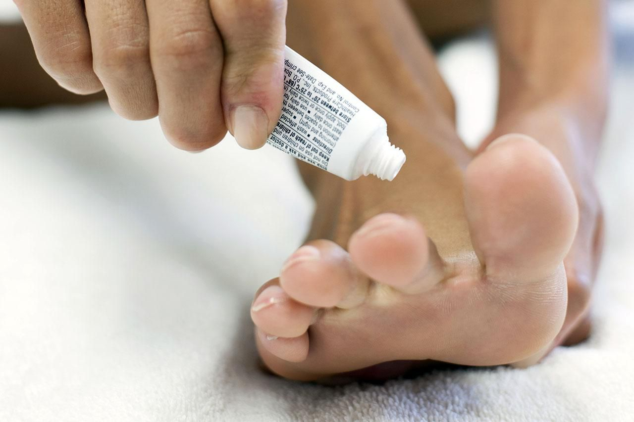 Mujer aplicando ungüento al pie, recortado