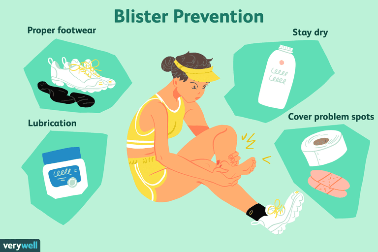 3098c3fb77a 7 Strategies to Prevent Foot Blisters