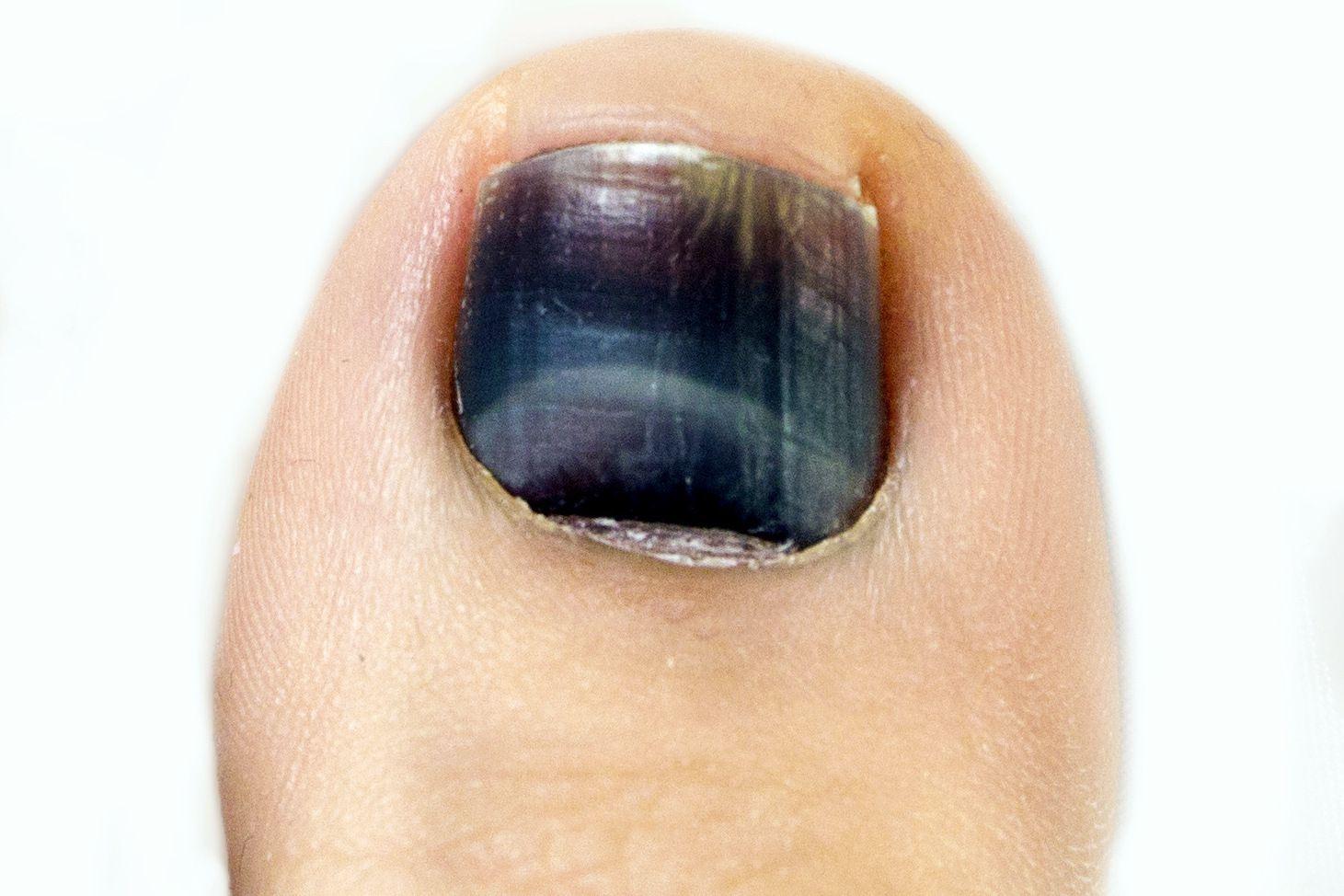 Black Toenails From Running or Walking