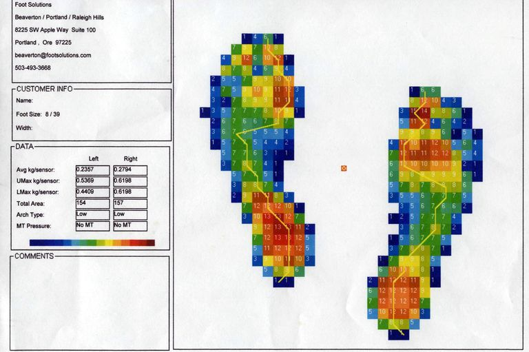 Foot Analysis Scan