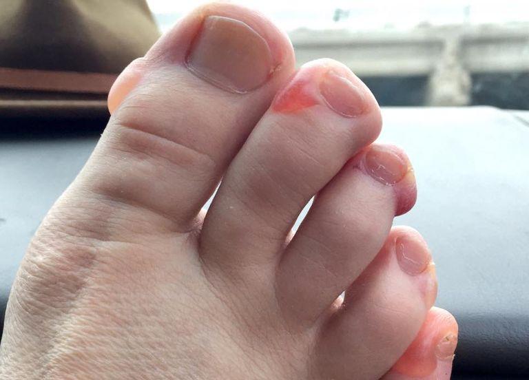 Blisters after Chicago Marathon