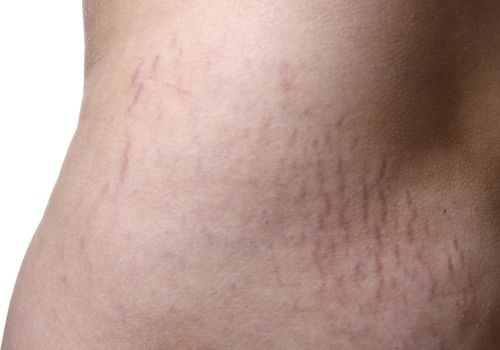 stretch marks after weight loss