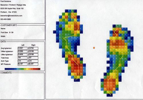 Escaneo de análisis de pie