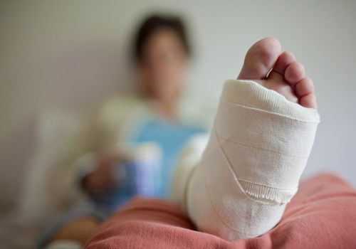 Woman in bed with broken leg
