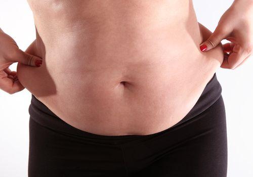 exceso de piel después de la pérdida de peso