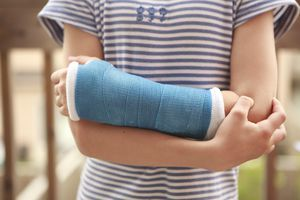 young girl's arm with cast