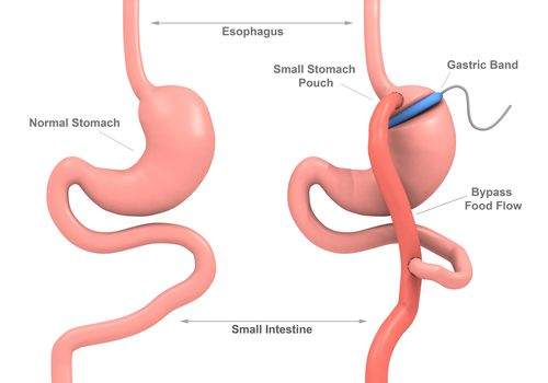 Band Gastric Bypass Surgery