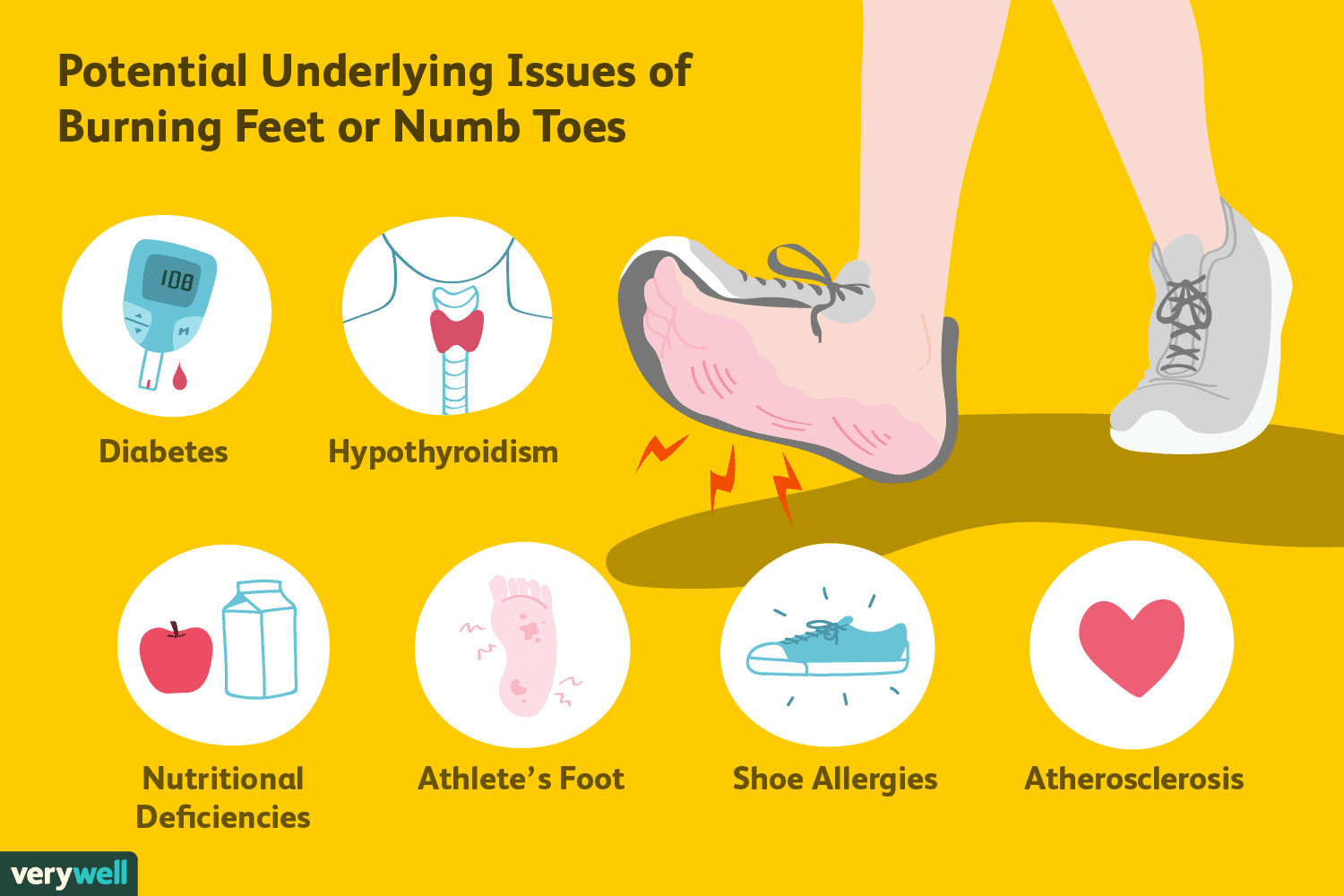 Burning Feet Or Numb Toes Causes