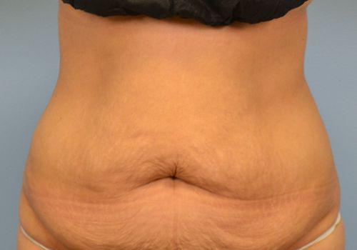 loose abdominal skin