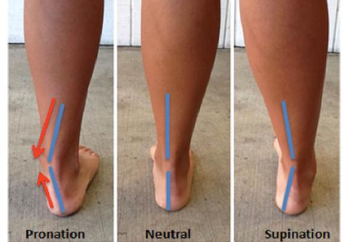 Comparación lado a lado de pronación, neutro y supinación.