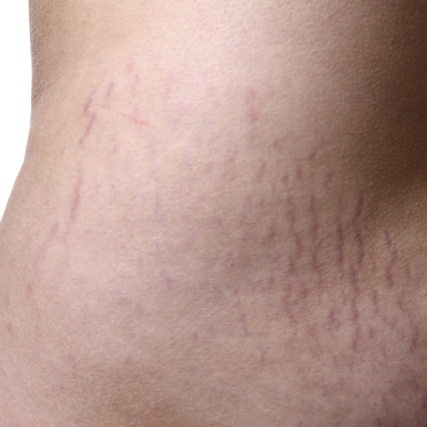 How To Handle Stretch Marks After Weight Loss
